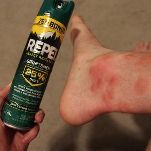 Bug spray doesn't work!